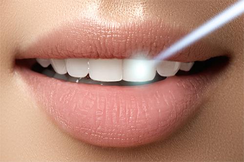 Lasersko beljenje