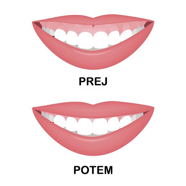 Preoblikovanje dlesni 2