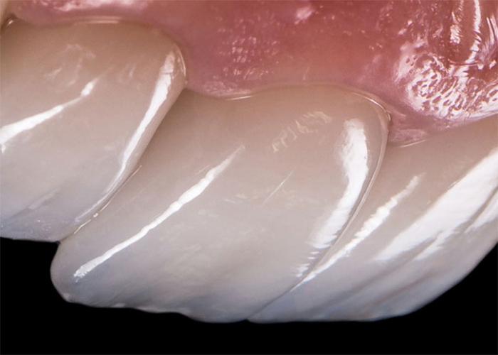 Zobne luske.jpeg-1